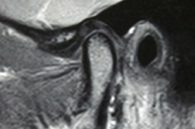 TMJ Imaging