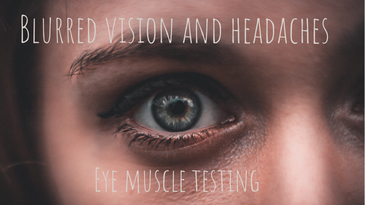 Testing for blurred or double vision for headaches